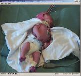 Obr. 1a. Ohtaharův syndrom u dvouměsíčního dítěte – tonický záchvat.