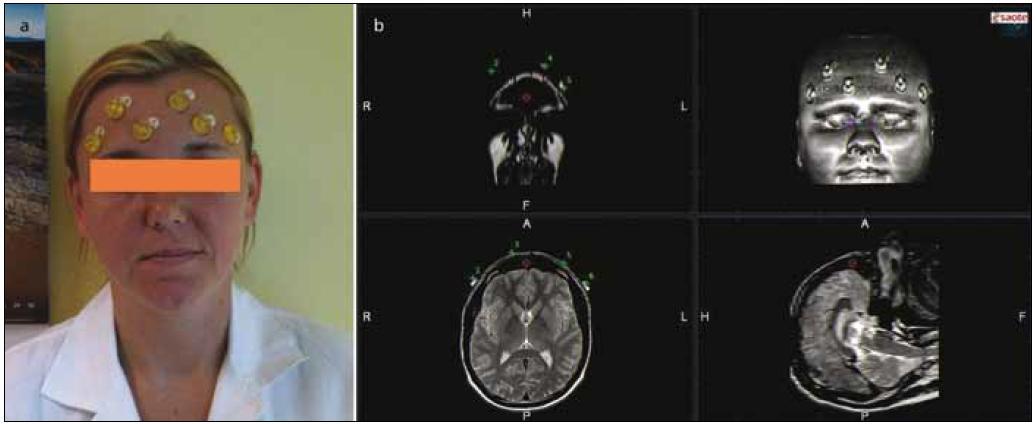 Umístění umělohmotných značek na obličeji vyšetřovaného subjektu (1a) a 3D rekonstrukce MR obrazu (1b).