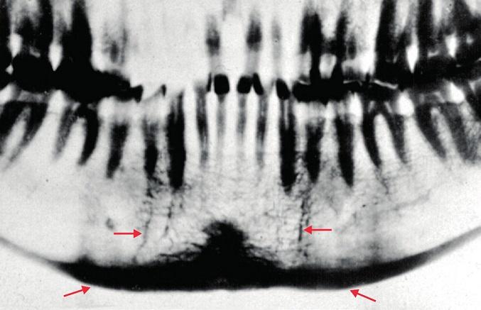 Známky lomných linií po obou stranách brady (horní šipky). Ztluštělá kortikalis dolního okraje čelisti (dolní šipky).