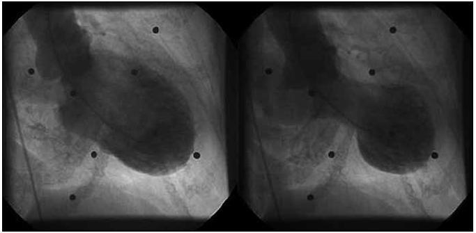 Angiografický obraz levé komory v diastole (vlevo), v systole (vpravo).