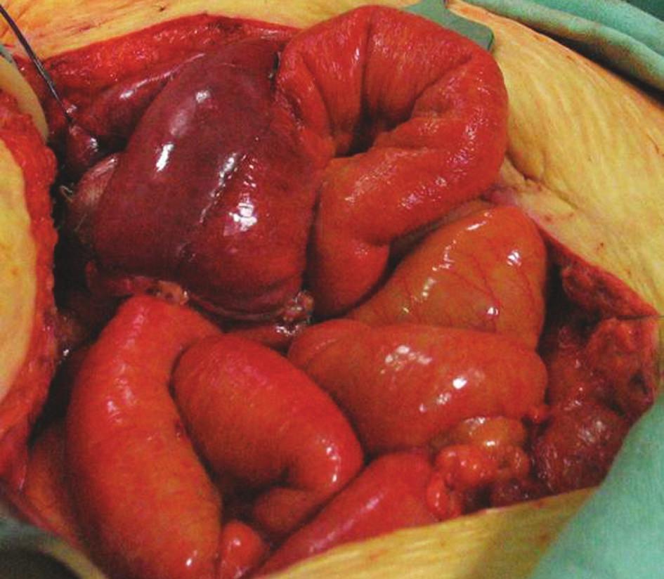 Kazuistika III – Suspektně ischemická klička exkludovaného ilea (neoveziky) Fig. 7. Case report III – Suspect ischemic segment of excluded part of ileal bowel (neovesica)