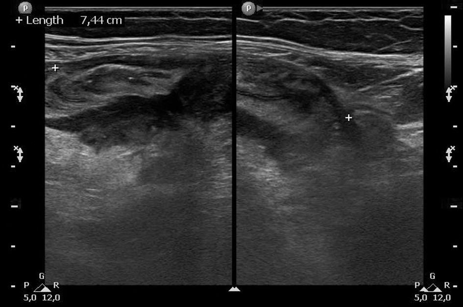 Ultrazvukové vyšetření: obraz akutní divertikulitidy sigmatu s edematózním rozšířením stěny střeva