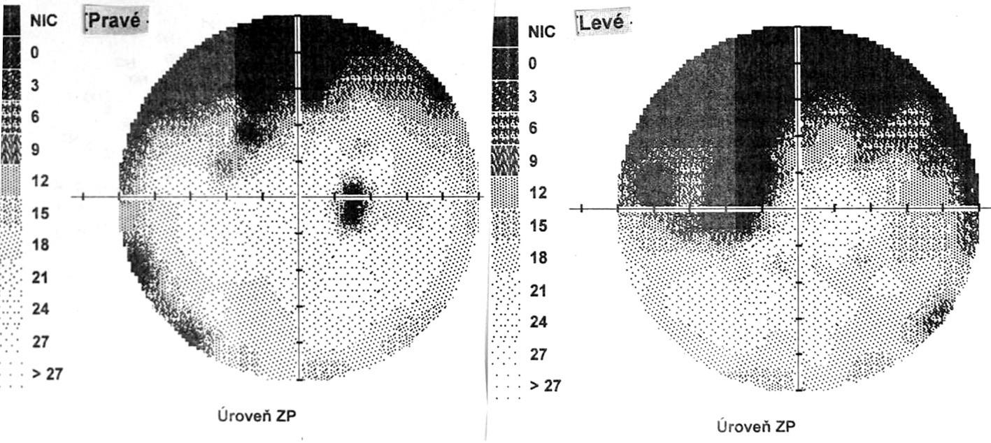 Perimetrický nález – uveitické štádium VKH syndrómu
