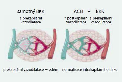 Mechanizmus účinku ACE inhibitorů na snížení otoků po kalciových blokátorech