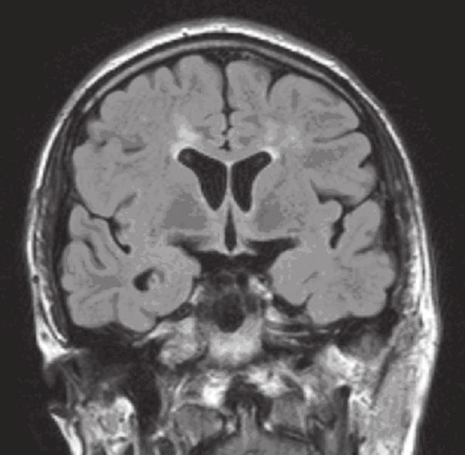 MR mozku: FLAIR koronárně (v odstupu jednoho měsíce): pouze drobné reziduální hyperintenzity kolem obou postranních komor ve frontální oblasti.