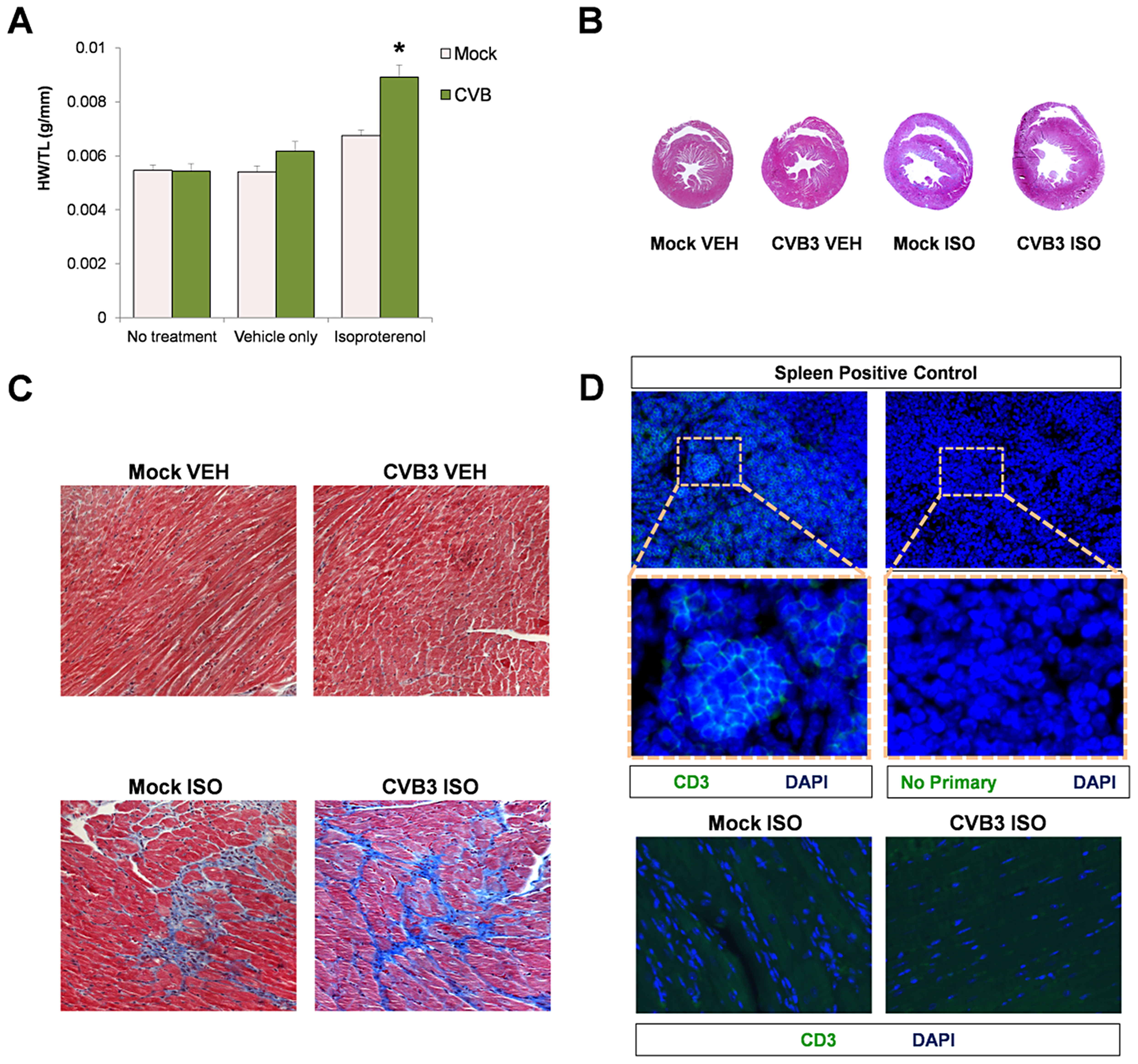 Beta-adrenergic stimulation-induced cardiac hypertrophy in adult mice infected with CVB3 at an early age leads to dilated cardiomyopathy.