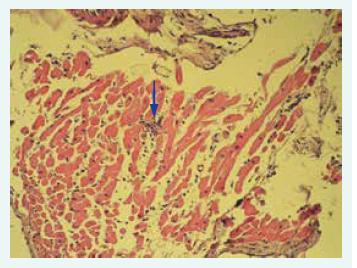 Histologický obraz lymfocytární myokarditidy: fokus inflamatorní celulizace označen šipkou.
