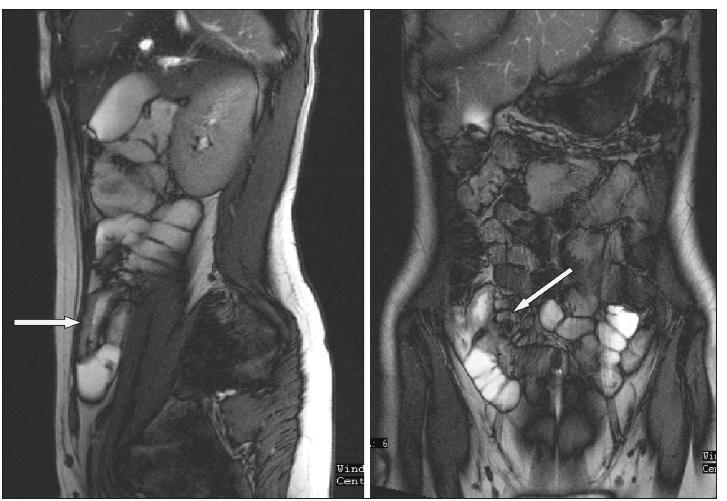 MR enterografie – zesílení terminálního ilea a zvětšené uzliny v mezenteriu Fig. 6. MRI enterography –thickening of the terminal ileum and enlarged mesenteric lymph nodes