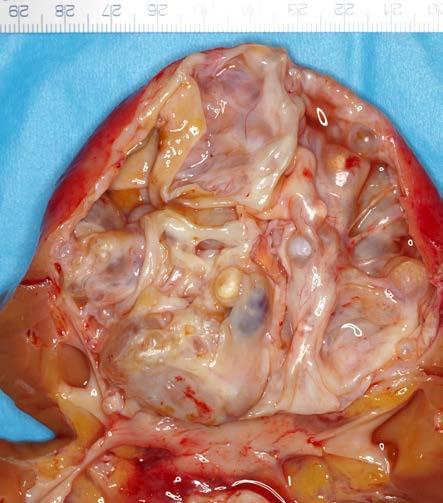 <i>Smíšený epiteliální a stromální tumor ledviny</i> Fig. 4. <i>Mixed epithelial and stromal tumour</i>
