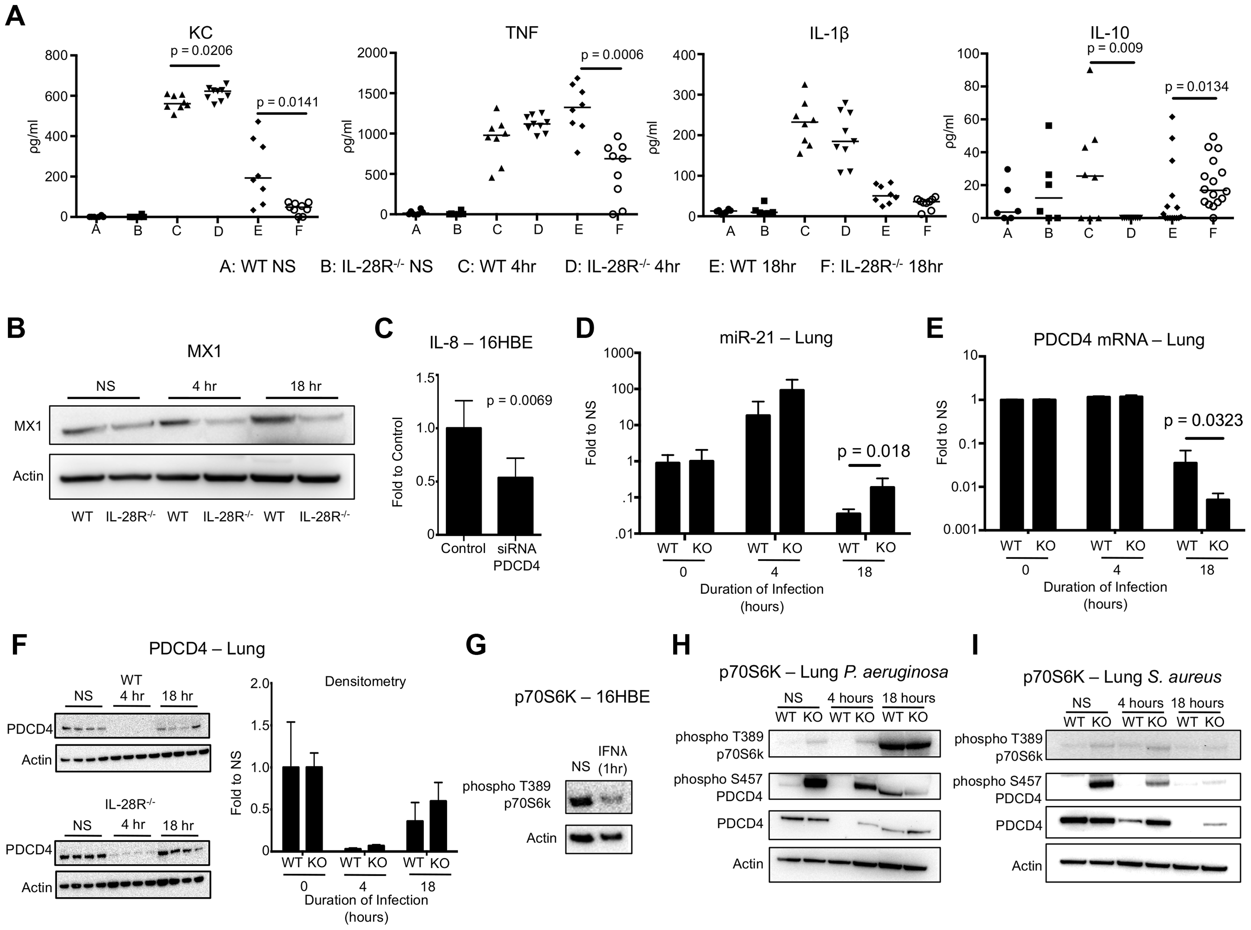 <i>P. aeruginosa</i> induced cytokine, miR-21, and PDCD4 expression in WT and IL-28R<sup>−/−</sup> mice.