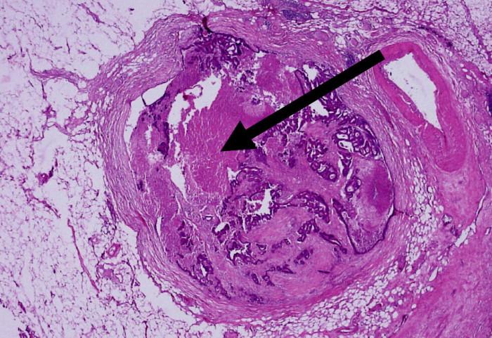 Extranodální nádorové depozitum s vazivovým pouzdrem bez přítomnosti lymfatické tkáně (HE, 20x) Fig. 3. Extranodal tumor deposit with fibrous capsule without lymphatic tissue (HE, 20x)
