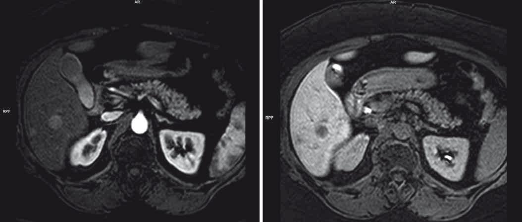 Obraz jaterního postižení charakteru metastáz dle MRI.