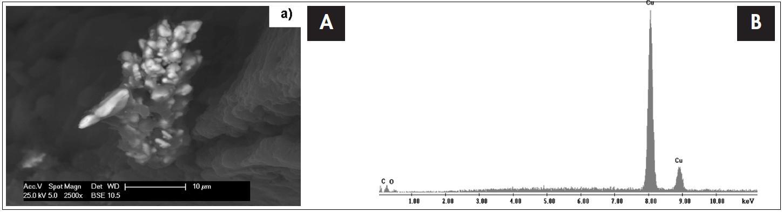 Snímek tkáně tonsily 48 letého muže - hutníka se spinocelulárním karcinomem patrové mandle ze skenovacího elektronového mikroskopu s EDS detektorem s odpovídajícím EDS spektrem, který je výsledkem bodové analýzy. Píky označené písmenem Cu dokazují přítomnost mědi v nádorové tkáni.