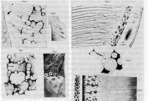 Interglobulární dentin. Ilustrace z Čermákovy dizertační práce.
