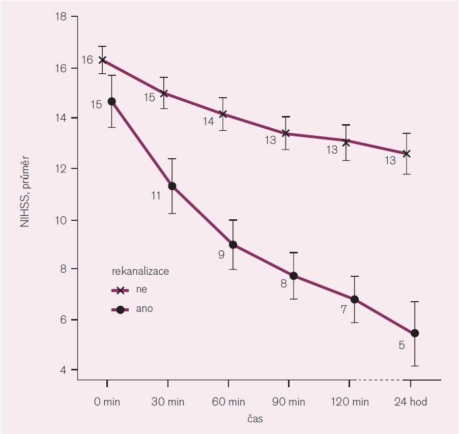 Korelace změny NIHSS v závislosti na rekanalizaci tepny.