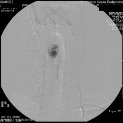 Obr. 3a. Selektivní angiografie s průkazem vyživující tepny a sytícím se terčíkem. Nález potvrzuje diagnózu hemangioblastomu.