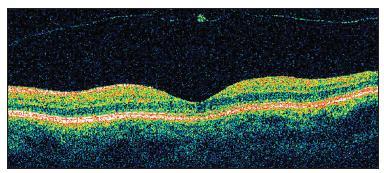 OCT dokumentuje u pacientky č. 3 správnu architektúru fovey a flotujúcu zadnú kôru sklovca s drobným zahustením po vitreo- makulárnej adhézii, eventuálne aj s kúskom neurosenzorickej sietnice