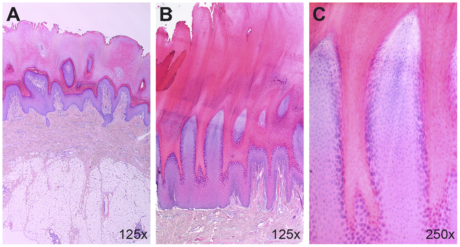 Histopathological findings in the palmoplantar epidermis.
