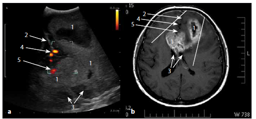 Glioblastom frontálně vlevo a v corpus callosum v sonografickém duplexním a MR T1W obraze. Fig. 9. Glioblastoma of the left frontal lobe and of corpus callosum in ultrasound duplex image and MRI T1W image.
