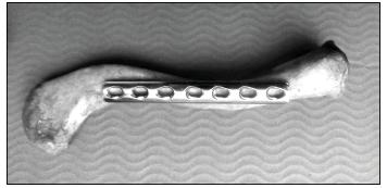 Možnosti přiložení 3.5 mm dlažek ke klíční kosti