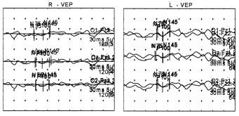Vyšetření P-VEP provedené 7 měsíců po pravděpodobné intoxikaci znázorňuje oboustranně patologicky nízké amplitudy odpovědí.