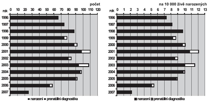 a. Absolutní počty koarktace aorty v ČR, 1996 – 2007  b. Relativní incidence koarktace aorty v ČR, 1996 – 2007