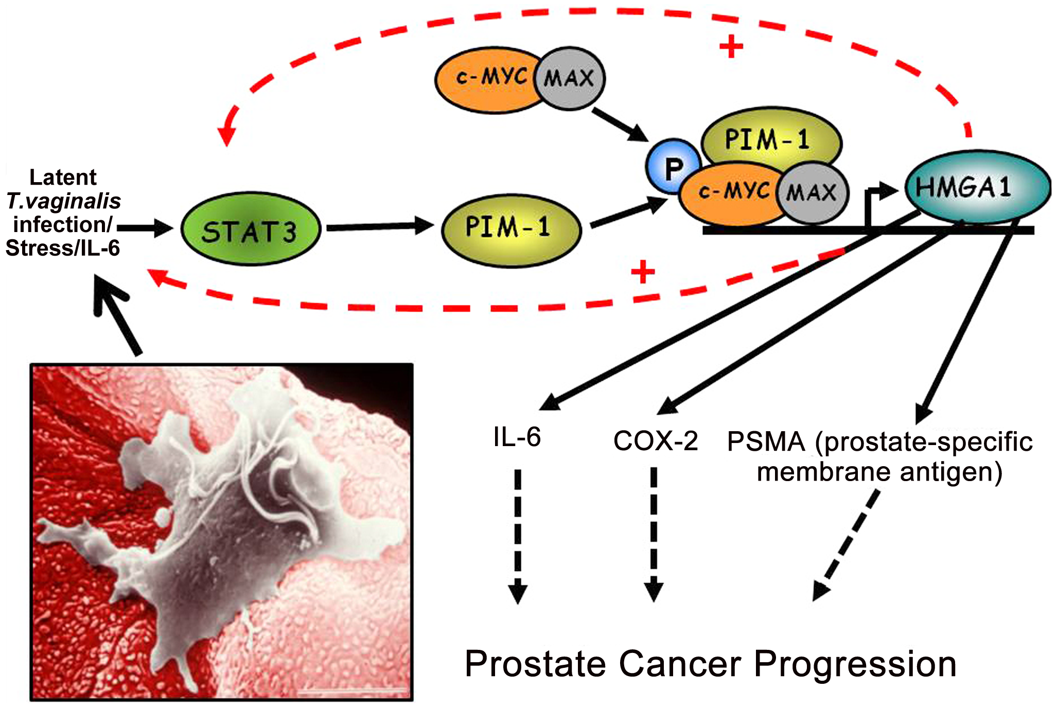 A working model of how chronic, latent <i>T. vaginalis</i> infection of prostate tissue up-regulates the signaling cascade leading to prostate carcinogenesis.