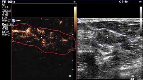 Desátá sekunda vyšetření. Velmi dobře patrné marginální, centrální i penetrující cévy v karcinomu. Současně však dochází k rychlému vymývání kontrastní látky (wash out), což je typické pro karcinomy.