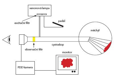 Princip zapojení fluorescenční cystoskopie Fig. 1. Principle of fluorescent cystoscopy set up