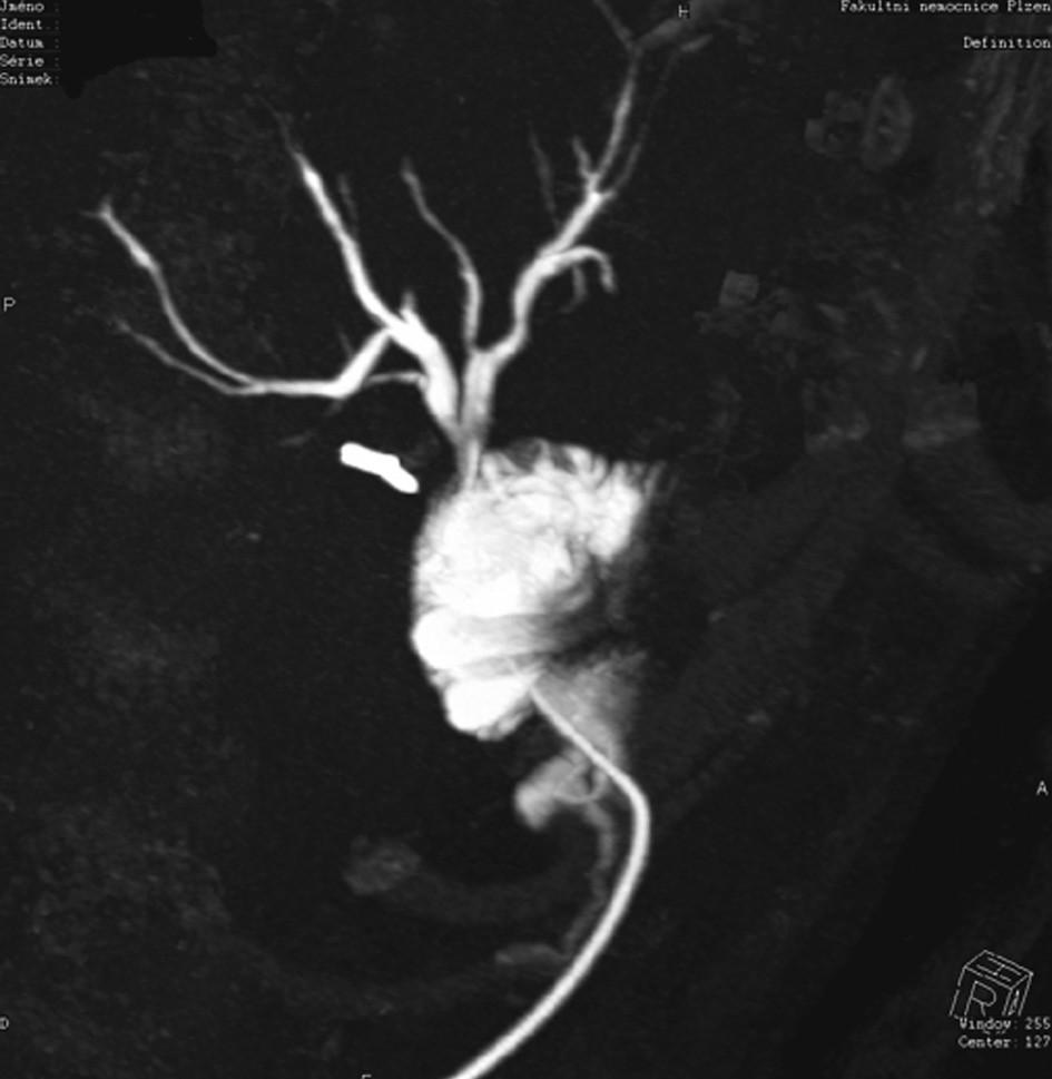 CT s nástřikem kontrastní látkou do Volkerova drénu. Stav po rekonstrukci biliární stenózy.