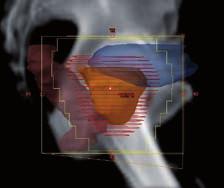 Cílový objem a rizikové orgány v BEV projekci Fig. 2 Target volume and organs at risk in the BEV projection
