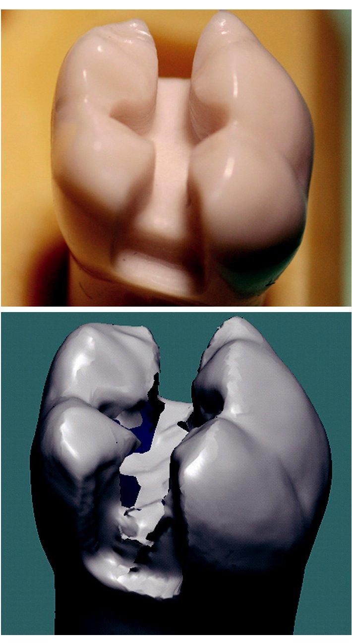 a) Zub 36 - MO pohled. b) Artefakt - neoskenovaná místa.