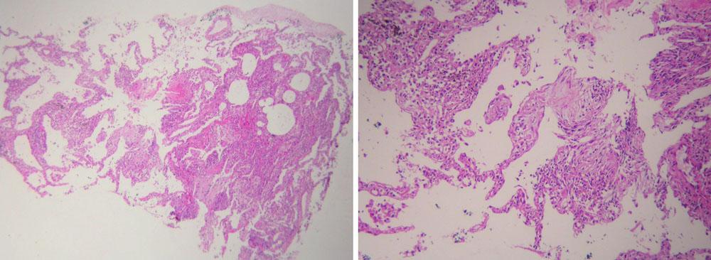 Obr. 5, 6. Histologický obraz EAA z materiálu získaného transbronschiálno u biopsiou pľúc. Rozšírené interalveolárne septá infiltrované lymfocytmi, histiocytmi v časti alveolov s obrazom nešpecifckého organizujúceho alveolárneho poškodeni a s organizáciou exsudátu s ojedinelou viacjadrovou bunkou [40].