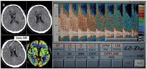 Nativní CT mozku po implantaci čidel monitorování tkáňové oxymetrie a metabolizmu a zevní komorové drenáže. Patrné jsou ischemie v povodí ACA bilat. jak na nativním CT, tak i na perfuzním skenu v modalitě CBF (Cerebral Blood Flow; a). TCD po aplikaci bolusu nitroprusidu sodného ukazuje střední průtokovou rychlost v povodí ACM dx 286 cm/ s (b).