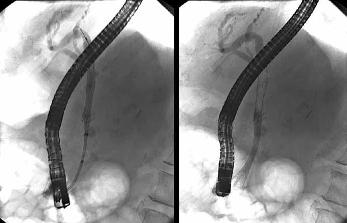 Zavedenie biliárneho plne povlečeného samorozťažného kovového stentu. Fig. 5. Insertion of biliary fully covered self-expandable metallic stent.