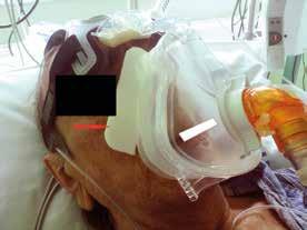 Prevence otlaků způsobených maskou pomocí molitanové podložky (červená šipka)