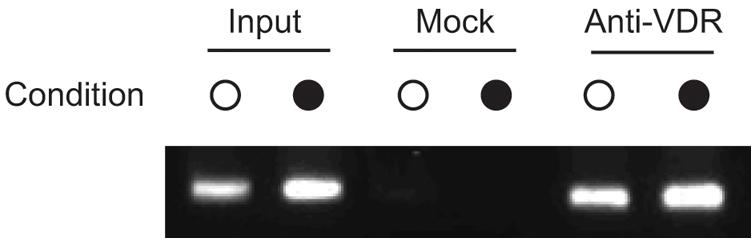 VDR is recruited to <i>HLA-DRB1*15</i> VDRE in PGF cells.