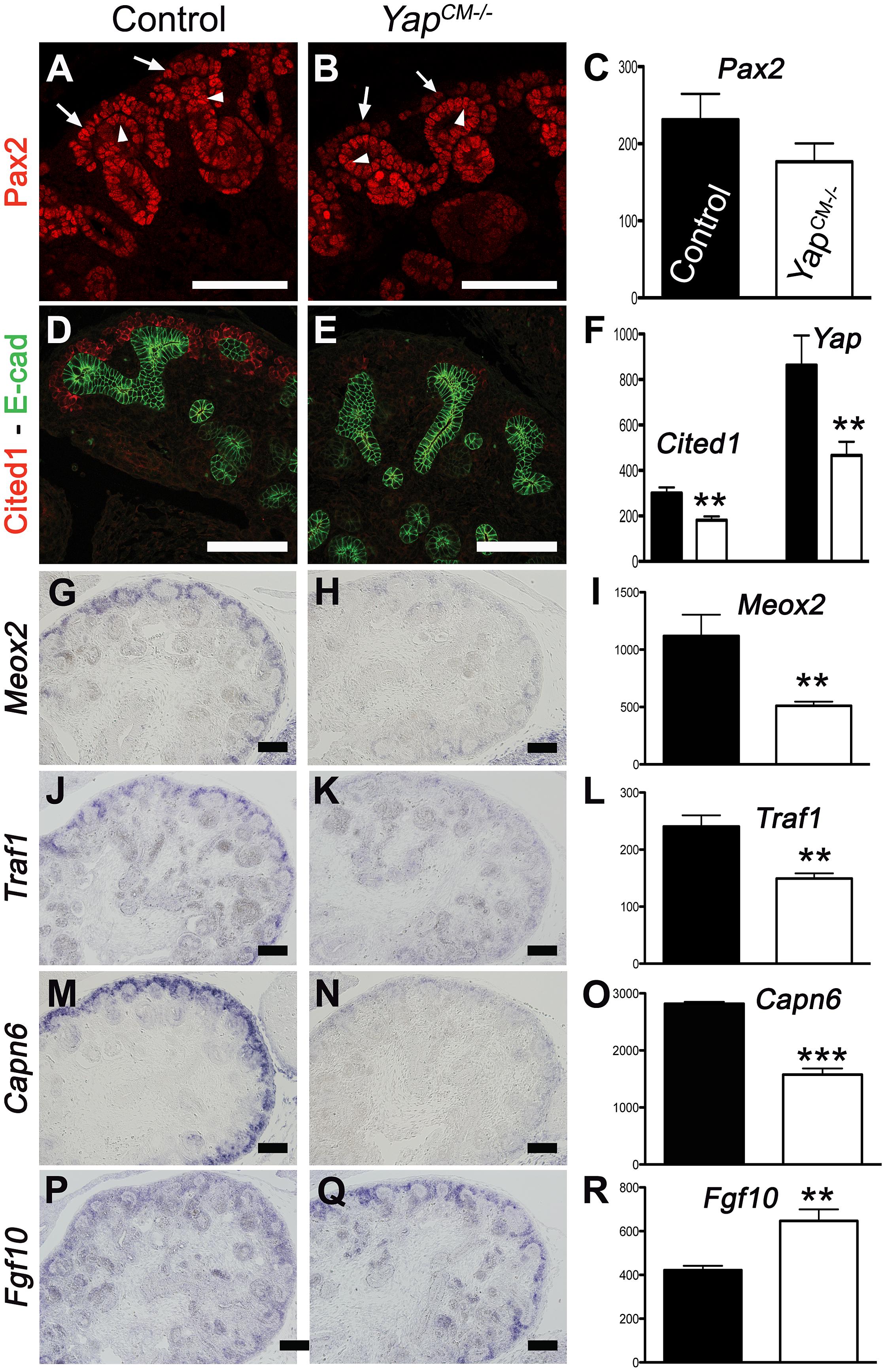 Transcriptional changes in <i>Yap</i> mutant CM progenitors cells.
