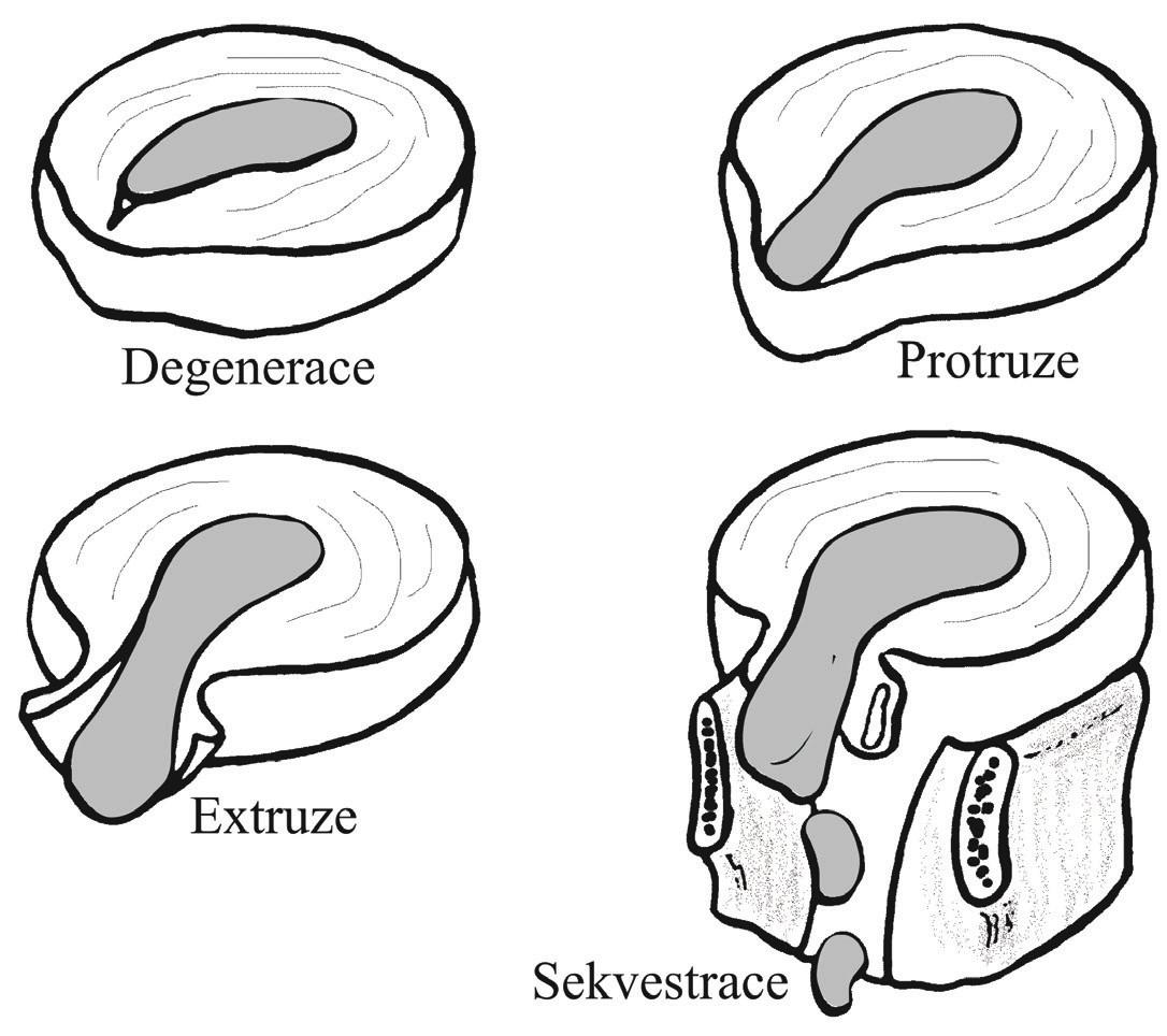 Stadia herniace intervertebrálního disku