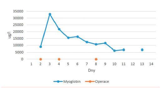 Hladina myoglobinu během hospitalizace