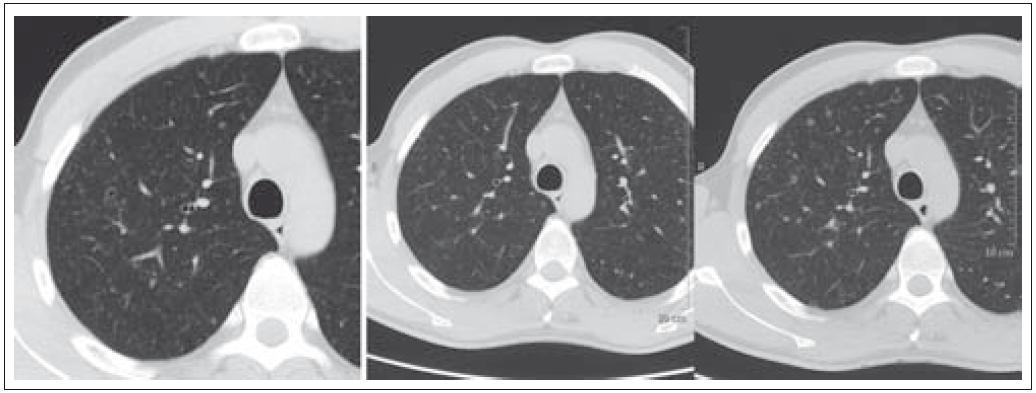Pacient nar. 1973, HRCT ze dne 5. 11. 2009 a 28. 1. 2010. Drobné cysty a nodularity – patognomonický obraz LCH.