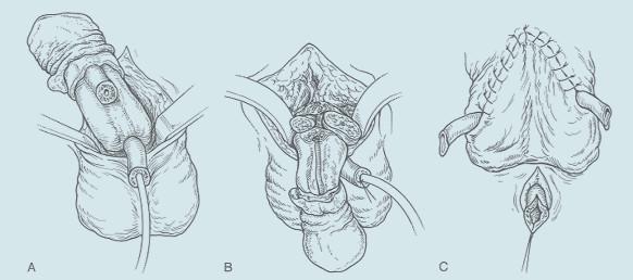 Radikální amputace penisu. Radikální amputace penisu. A: Uretra je izolována 2 cm proximálně od tumoru. Ligamentum suspensorium penis je přerušeno. Uretra je izolována od kavernózních těles a přerušena. B: Přerušení ligamentum suspensorium penis a ligatura dorzálních žil. Příčné přerušení kavernózních těles a jejich uzávěr matracovými stehy. C: Uretra je izolována, uvolněna od kavernózních těles a přerušena a podélně incidována. Uretra je vyšita jako perineální uretrostomie.