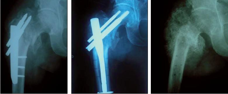 Kolaps zlomeniny, reOS PFN, pro infekt revize a následná extrakce, 7 měsíců od úrazu svalek (typ IV Osteogenesis imperfekta)
