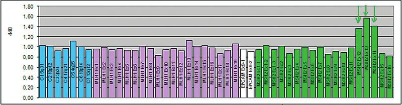 Zárodečná mutace velkého rozsahu v genu MSH2. Jedná se o duplikaci exonů 12, 13, 14, zachycenou metodou MLPA (SALSA MLPA KIT P003-B1, MRC-Holland). Výška hrotů >1,35 představuje duplikaci daného úseku
