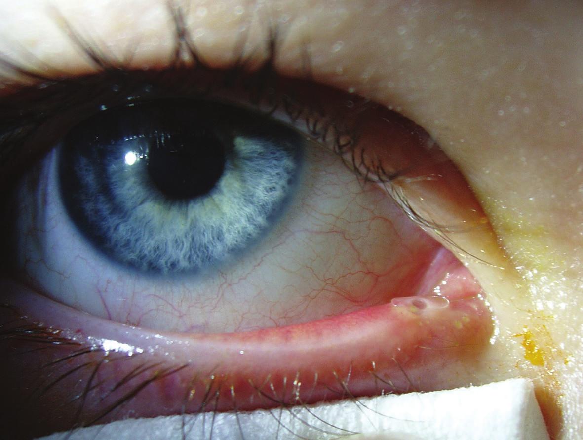 Monokanalikulární intubace pravého oka, silikonová kanyla v dolním slzném bodu