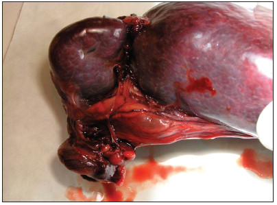 Torzia lienálnych ciev s trombami. Fig. 8. Torsion of splenic arteries with thrombus