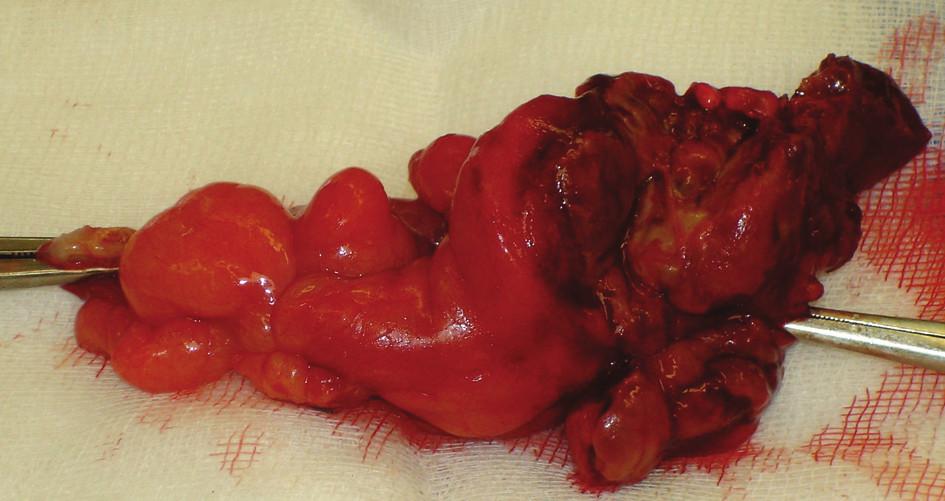 Preparát apendixu s perforací apexu Fig. 3. Preparation of the appendix with its apex perforation