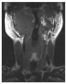 MRI recidivujícího maligního SFT. Parafaryngeální prostor je vyplněn měkkotkáňovou, poskontrastně se sytící izosignální expanzí, jež mediálně vyklenuje laterální stěnu faryngu (T1W obraz, koronální projekce).