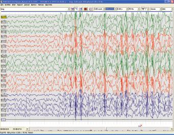 Bdělé EEG u 5letého chlapce s myoklonicko-astatickou epilepsií (Doose). Nepravidelné polyspike-wave komplexy na nedokonalém pozadí EEG záznamu.