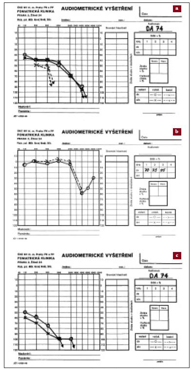 a, b, c. Různé typy percepčních vad sluchu – tónové audiogramy (údaje na ose x v Hz, na ose y v dB). Maximum sluchových ztrát je v oblasti vyšších frekvencí.